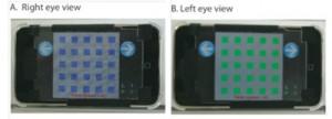 app para tratar la ambliopia u ojo vago