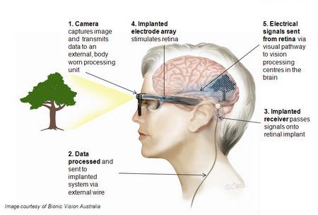 Como funciona el ojo bionico