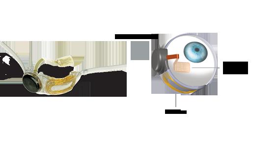Protesis de Retina Argus II