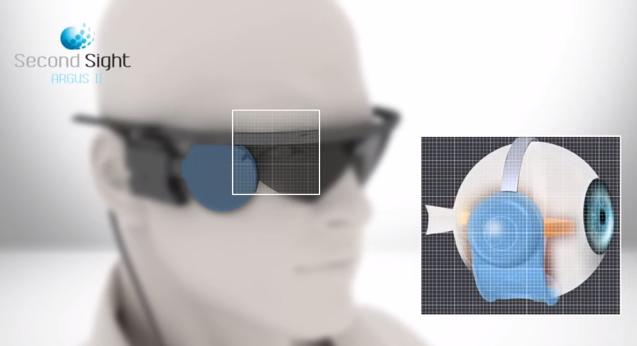 Chip implantado en la retina