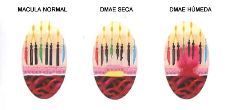 Figura 1: Afección fotorreceptores
