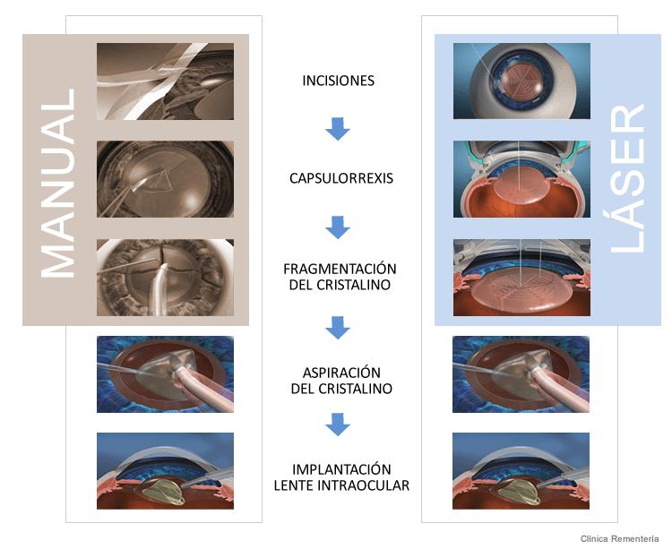 Operacion catarata tradicional vs laser