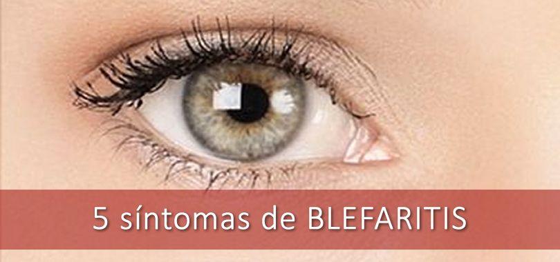 5 Síntomas de la Blefaritis